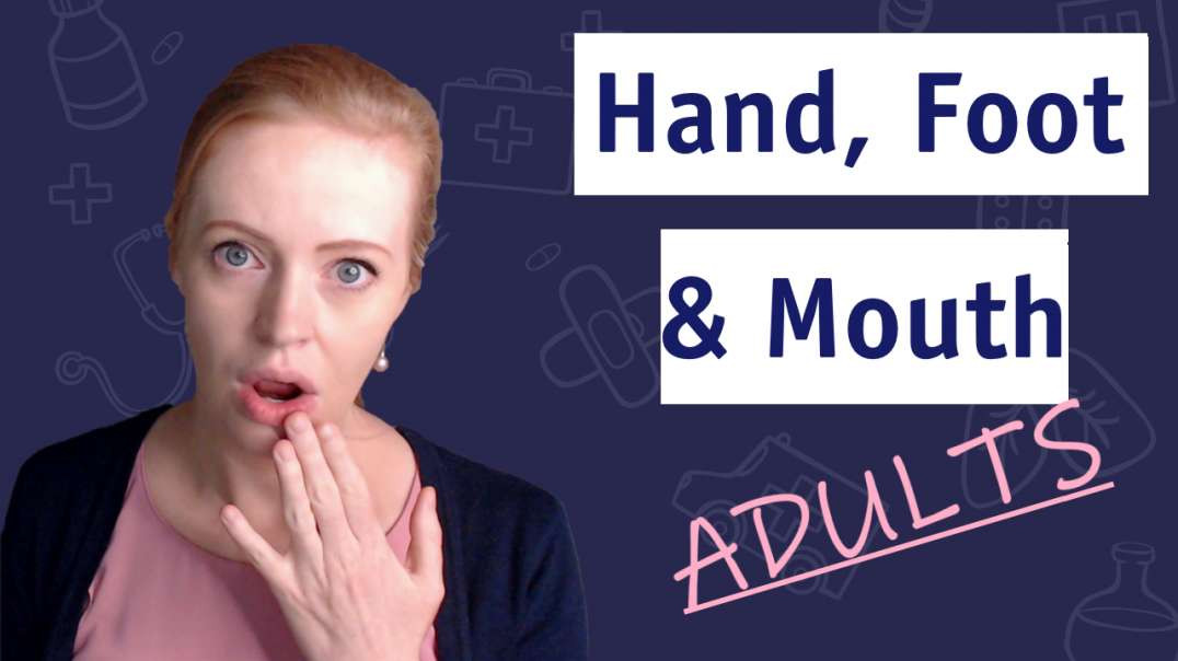 What Doctors Wish Adults Knew About Hand, Foot and Mouth Disease ?