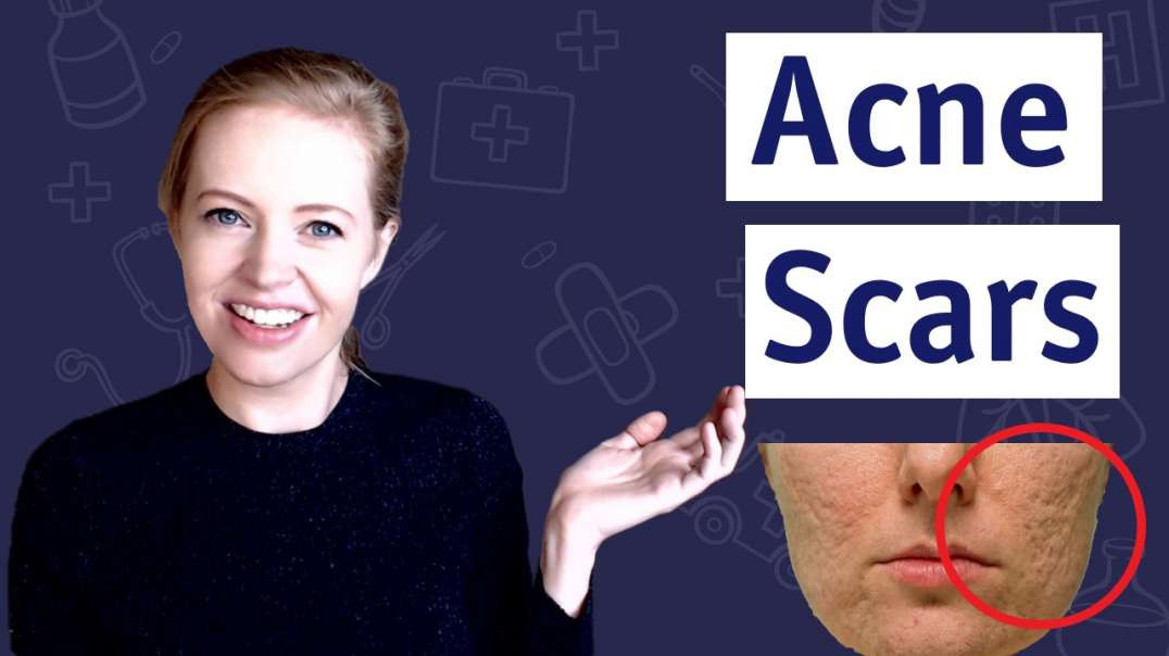 How To Get Rid Of Acne Scars 11 Remedies That Work ?