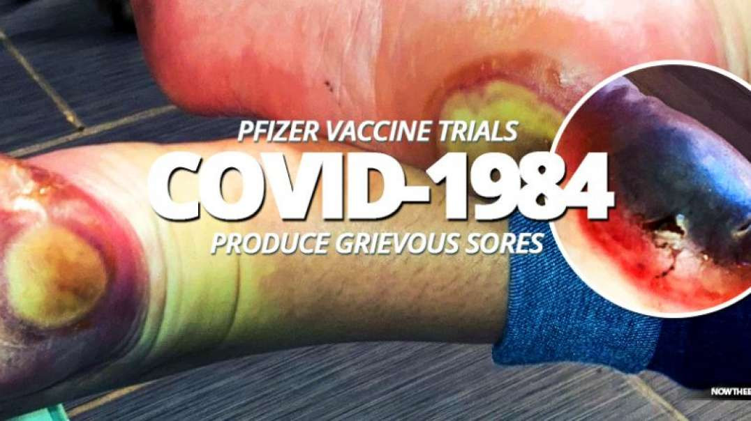 Fixed Drug Eruption Update - after COVID-1984 vaccine from Pfizer and BioNTech!  NWO Rising!