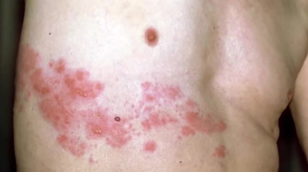 WARNING:  Pfizer vaccine may give you HERPES or SHINGLES