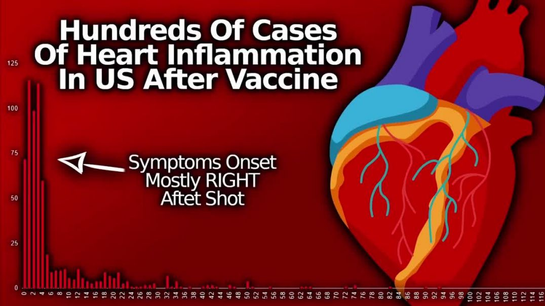 Vaccine Covid-19 Heart Inflammation Almost a Thousand Cases of Carditis & Pericarditis I