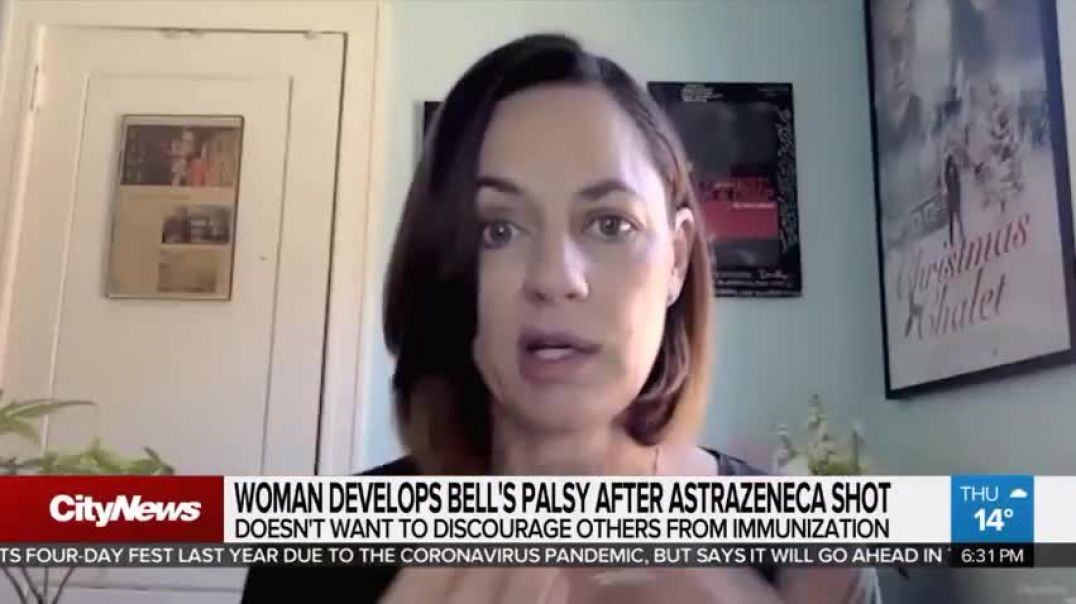 They Keep Pushing The Jabs! NOW they are saying Its okay if you Develop Bell's palsy?