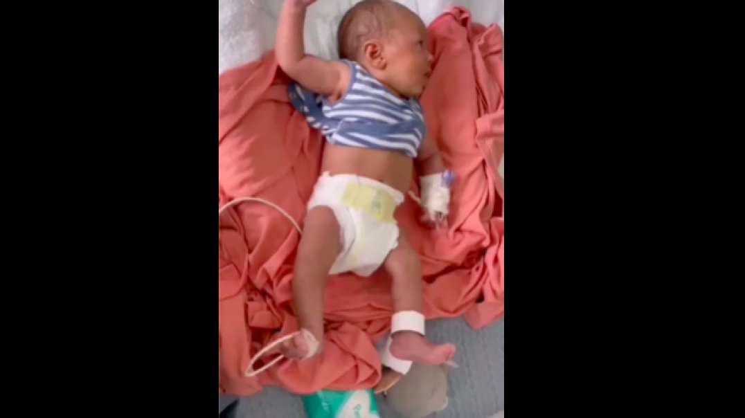 Infant with Uncontrollable Intermittent 'Jitters'| Vaxx Adverse Reaction