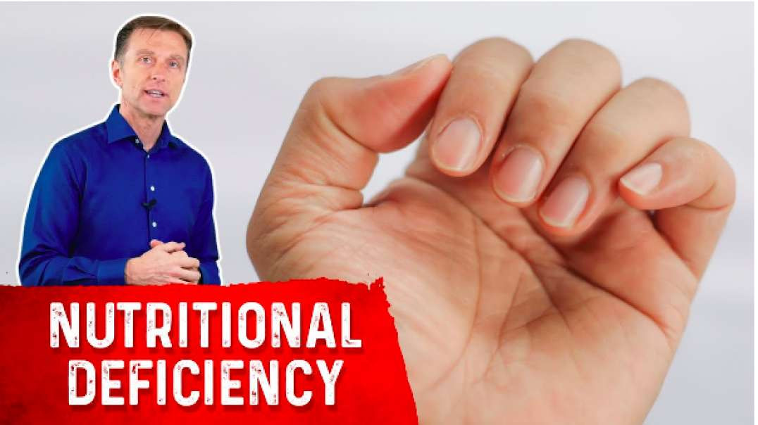 Dr. Eric Berg | Your Nail Helps Diagnose Nutrient Deficiencies ~ September 9, 2021
